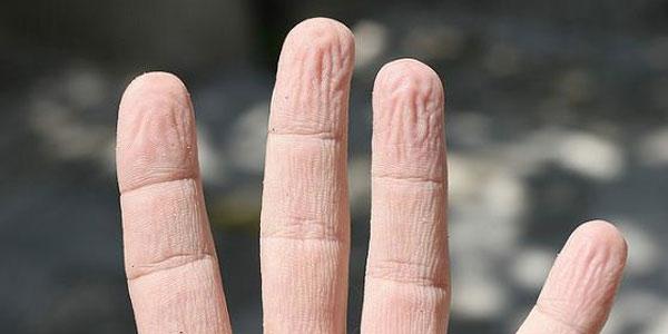 Image result for keriput jari